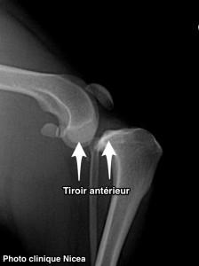 rupture du ligament croisé - signe du tiroir antérieur