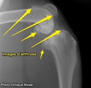 rupture ligament croisé - arthrose