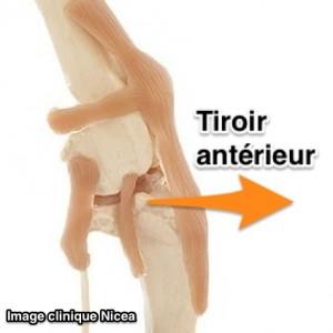 rupture du ligament croisé du chien - tiroir antérieur